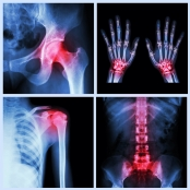 fracture x-rays
